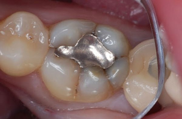 راهکار طلایی تسکین دندان درد