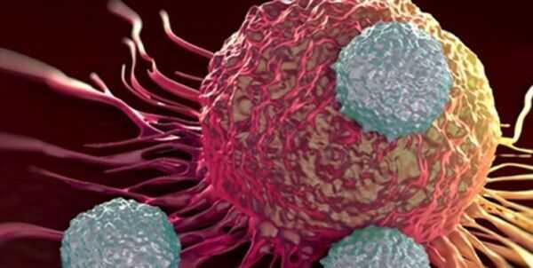 زنان مبتلا به سرطان درمان خود را به دلیل کرونابه تأخیر نیندازند